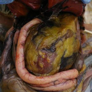 Cavity open.