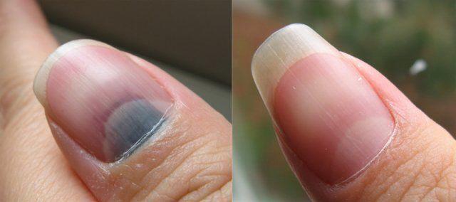 I don't want any medicine for a smashed thumb | Smyrna GA Handyman