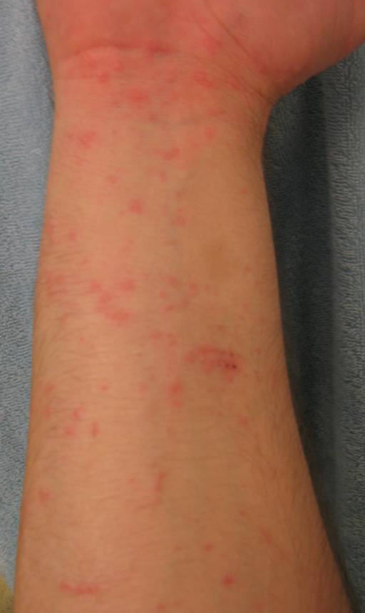 Is this poison oak / poison ivy (pics of my arms)